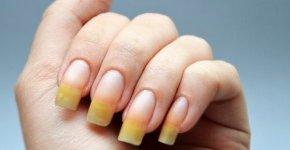 Ушиб ногтя на руке: лечение и восстановление