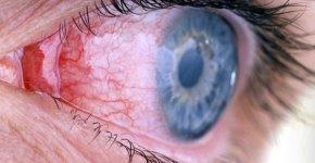 Аллергический конъюнктивит – обзор патологии