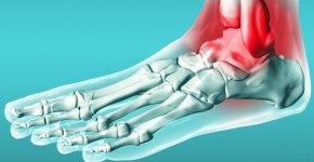 Признаки, причины, медикаментозные и народные методы лечения периартрита голеностопного сустава