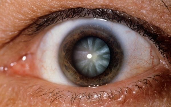 blinddarmkrebs symptome