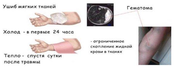 лечение сотрясение и ушибы головного мозга