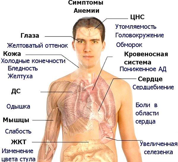 Синяки при железодефицитной анемии thumbnail