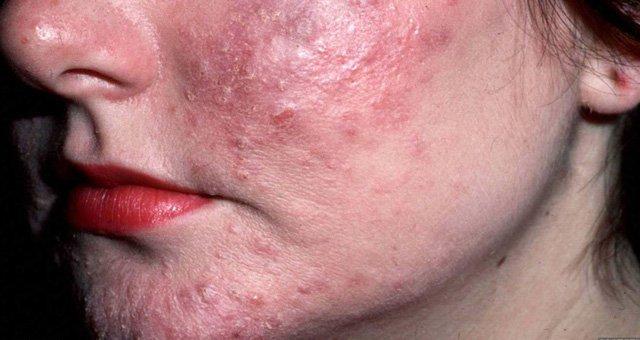 Пример демодекса на лице