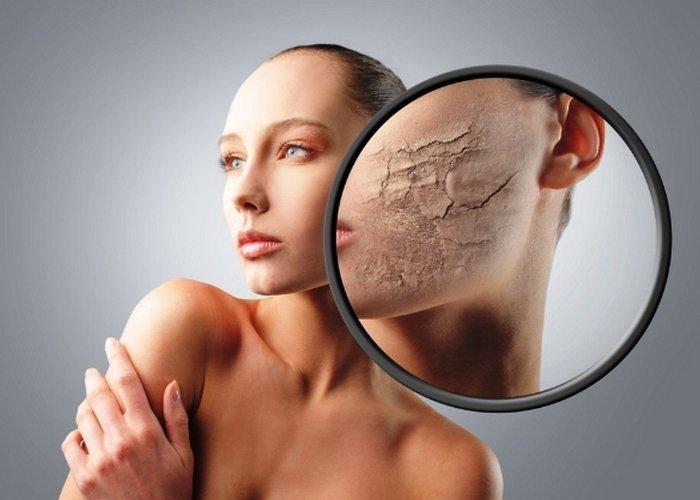 Шелушится кожа на лице: что делать и в чём причина?