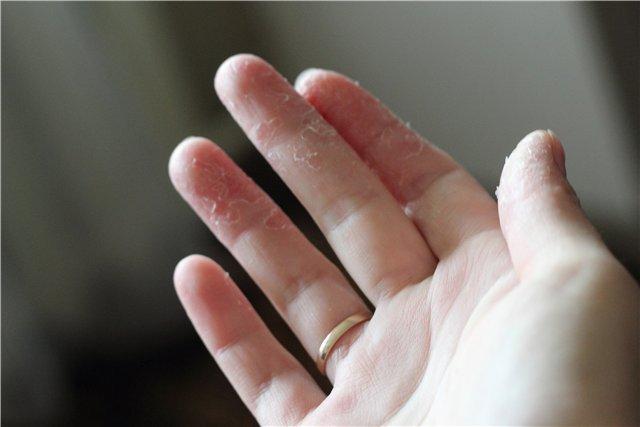 Трескающая кожа на пальцах рук