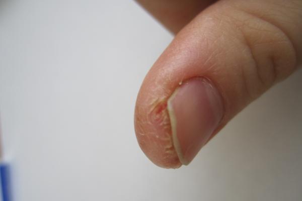 Трескающая кожа на пальцах рук около ногтей