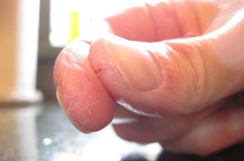 Трескающая кожа на подушечках пальцев рук