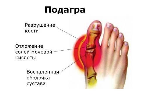 Боль в суставов пальцев ног боли во всех суставах одновременно