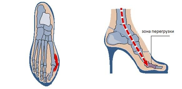 Причины боли косточки большого пальца на ноге
