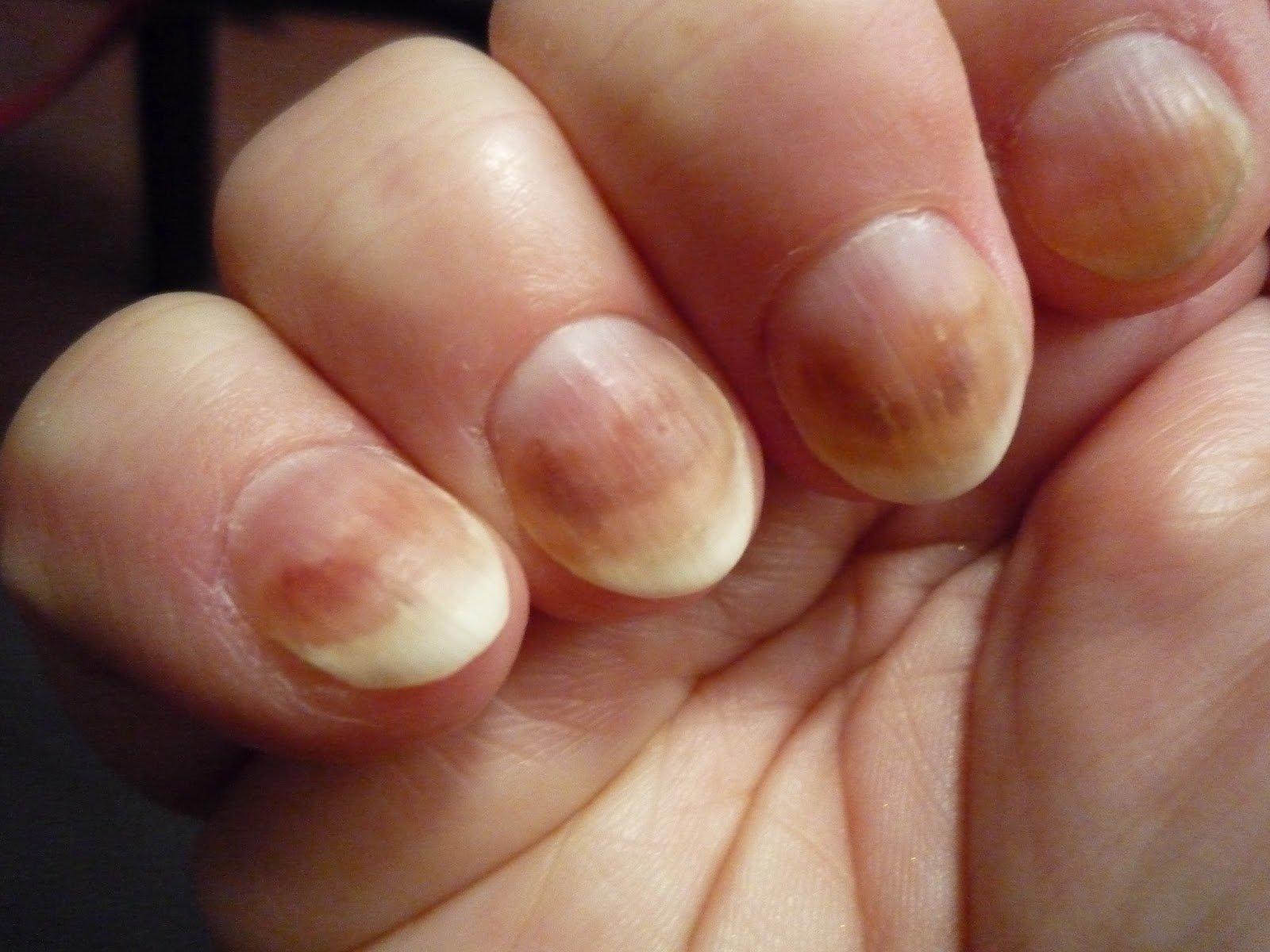 Лечение ногтей волнистые