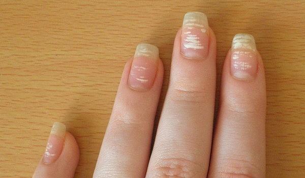Пятна на ногтях