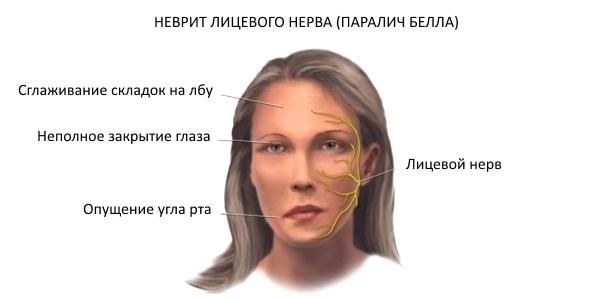 Болит лицо: причины, симптомы, лечение и профилактика лицевой боли