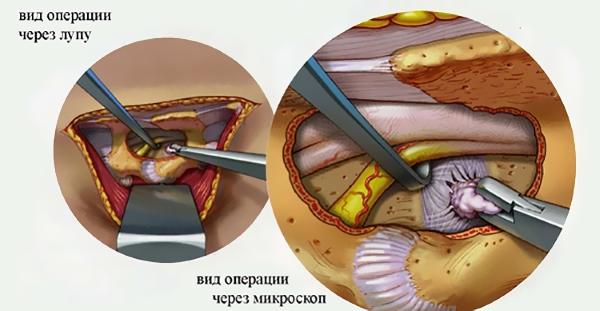 Болит левый бок со спины и высокая температура