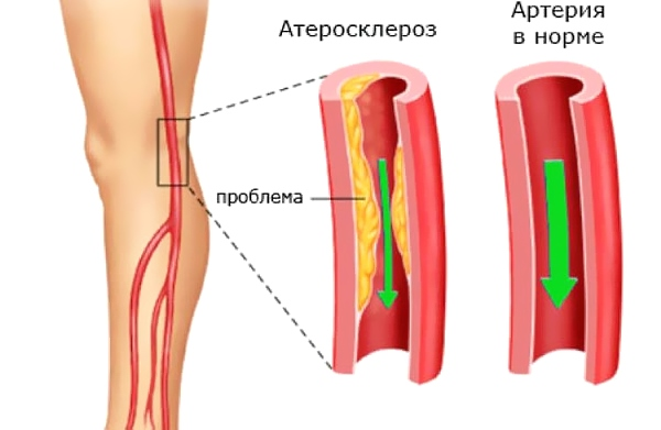Перемежающаяся хромота при атеросклерозе
