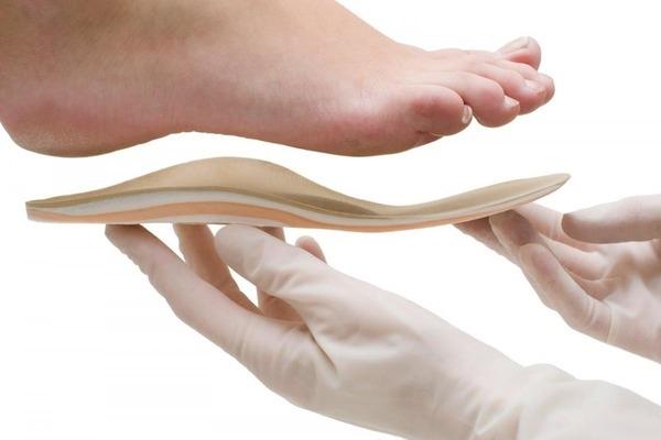 Ортопедические стельки при плоскостопии