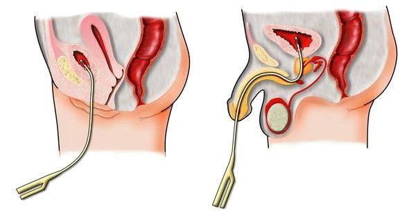 Цистография мочевого пузыря: подготовка и проведение процедуры