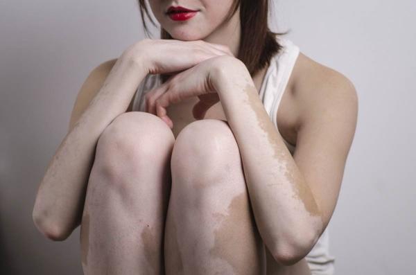 депигментация кожи лечение
