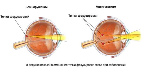Близорукость 3 какие нужны линзы
