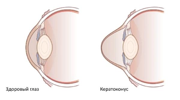 Что такое астигматизм глаза