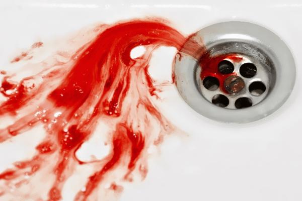 Кровотечение из десен что это такое