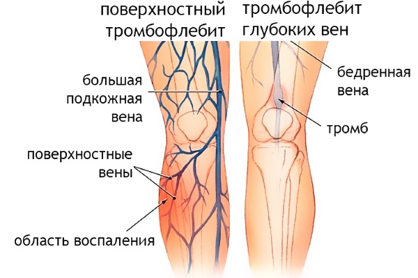 Первые признаки тромбофлебита нижних конечностей