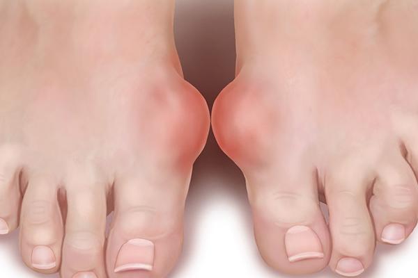 Как избавиться от шишки на ноге возле большого пальца