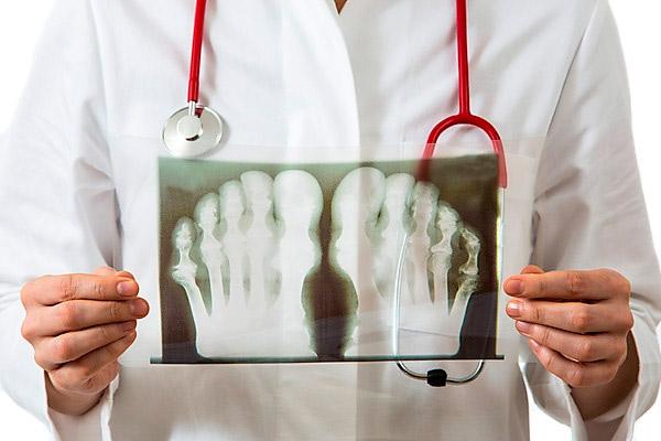 Как лечить подагру на большом пальце ноги: медпрепараты, операция ...