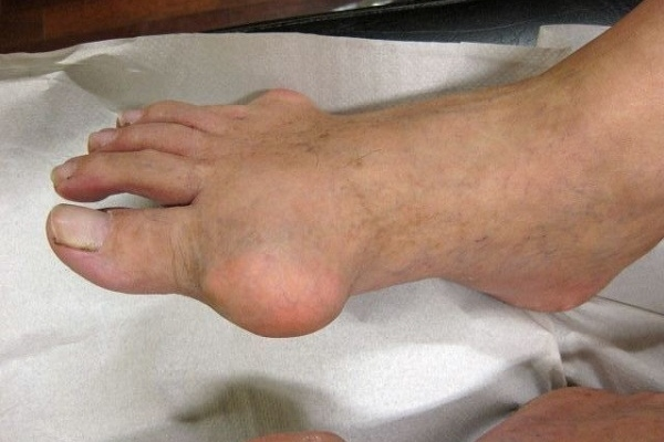 Народные средства от подагры на пальцах ног