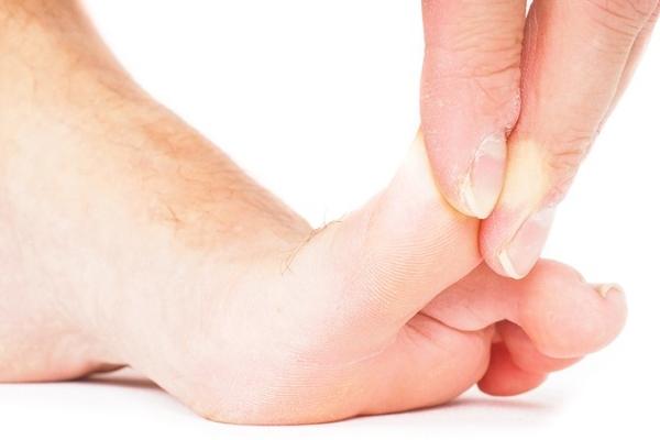 Болит сильно ушибленный палец большой на ноге thumbnail