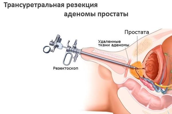 После операции тур аденомы простаты недержание мочи