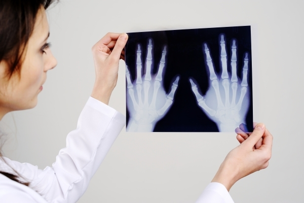 Диагностика деформирующего артрита