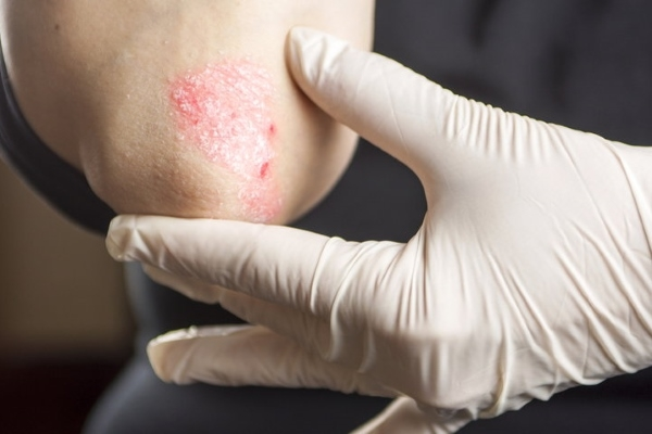 артрит артроз плечевого сустава симптомы лечение