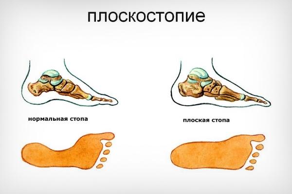 Норма и плоскостопие