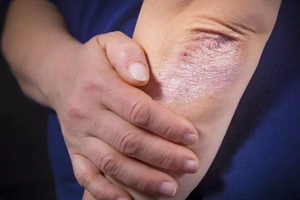 Чем опасен псориаз что будет если не лечить прогноз сколько живут с псориазом