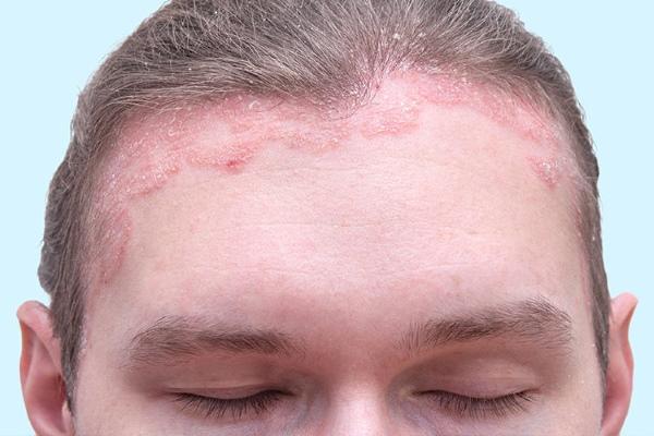 Первые признаки псориаза на коже лица