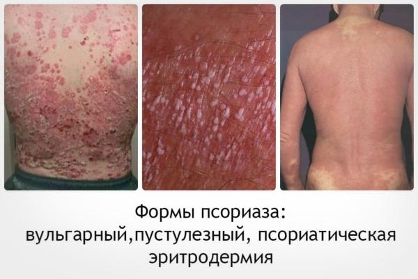 Как распознать псориаз - первые признаки псориаза