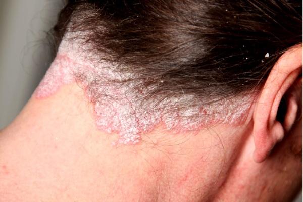 Псориаз Зимняя Форма Симптомы
