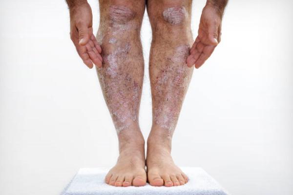 Псориаз на ногах и его лечение
