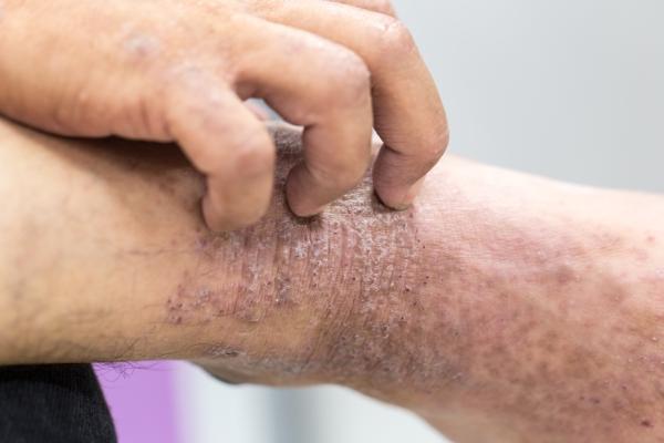 Что такое псориатическая эритродермия - диагностика и фото. Жми!